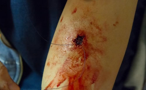 upper arm shot wound prosthetic - bloody